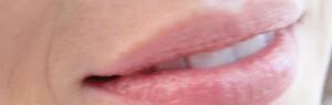 Schonende Mesotherapie in der Hautarztpraxis Dr. Besing in Gauting